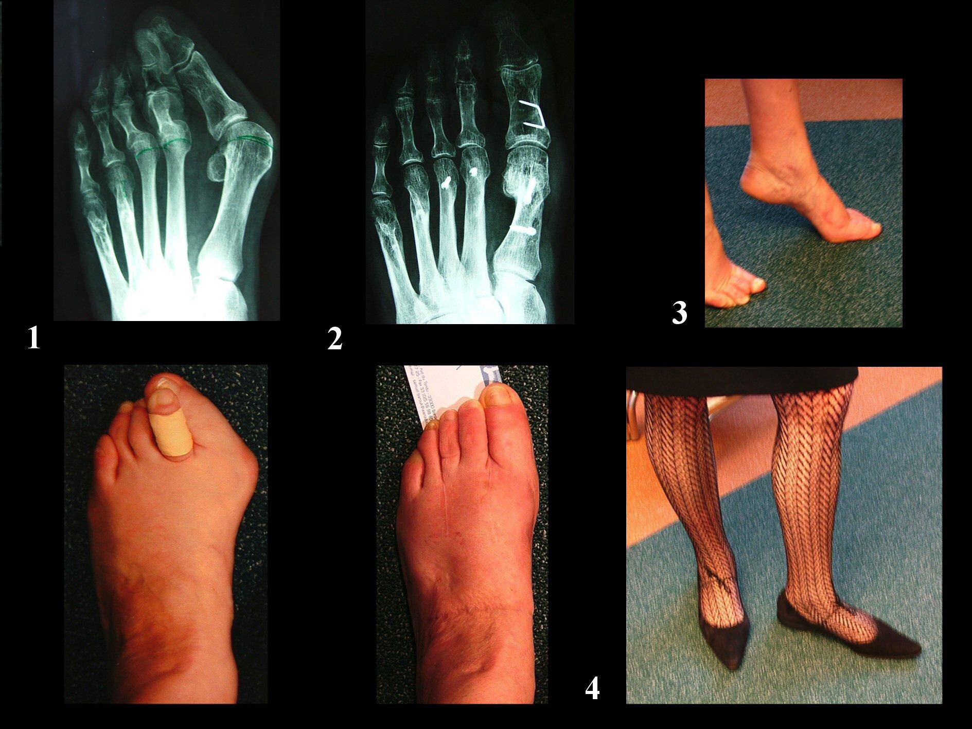 chirurgie des pieds prix